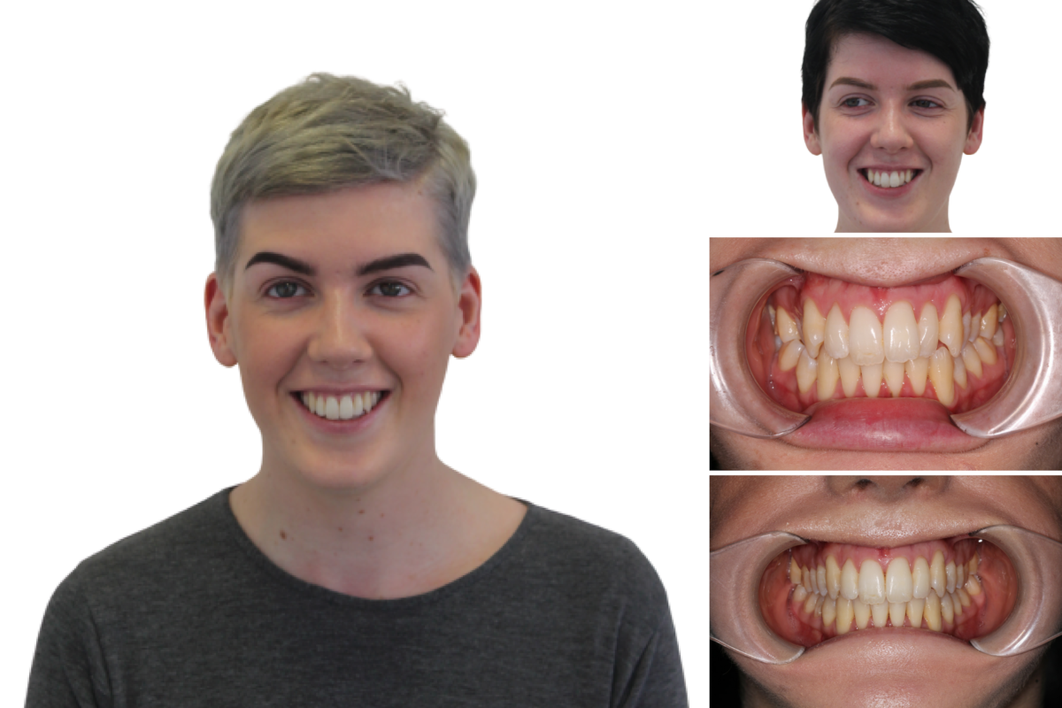 Transforming Your Smile