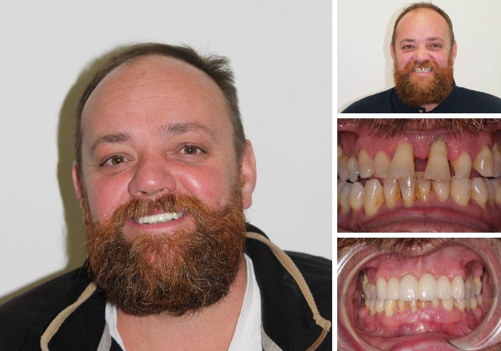 Dental Bridges at Hampshire Dentists