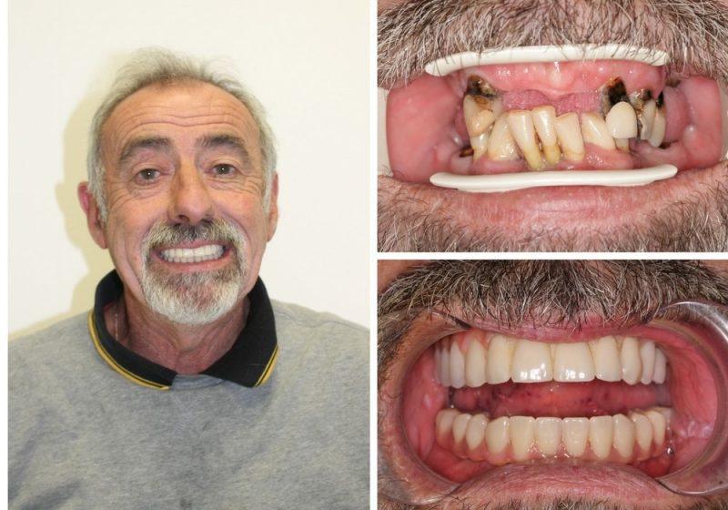 hampshire implants example