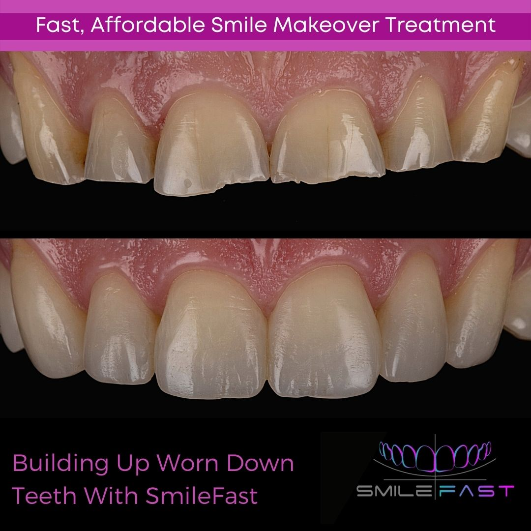 Introducing Smilefast – Fast, Affordable Veneers
